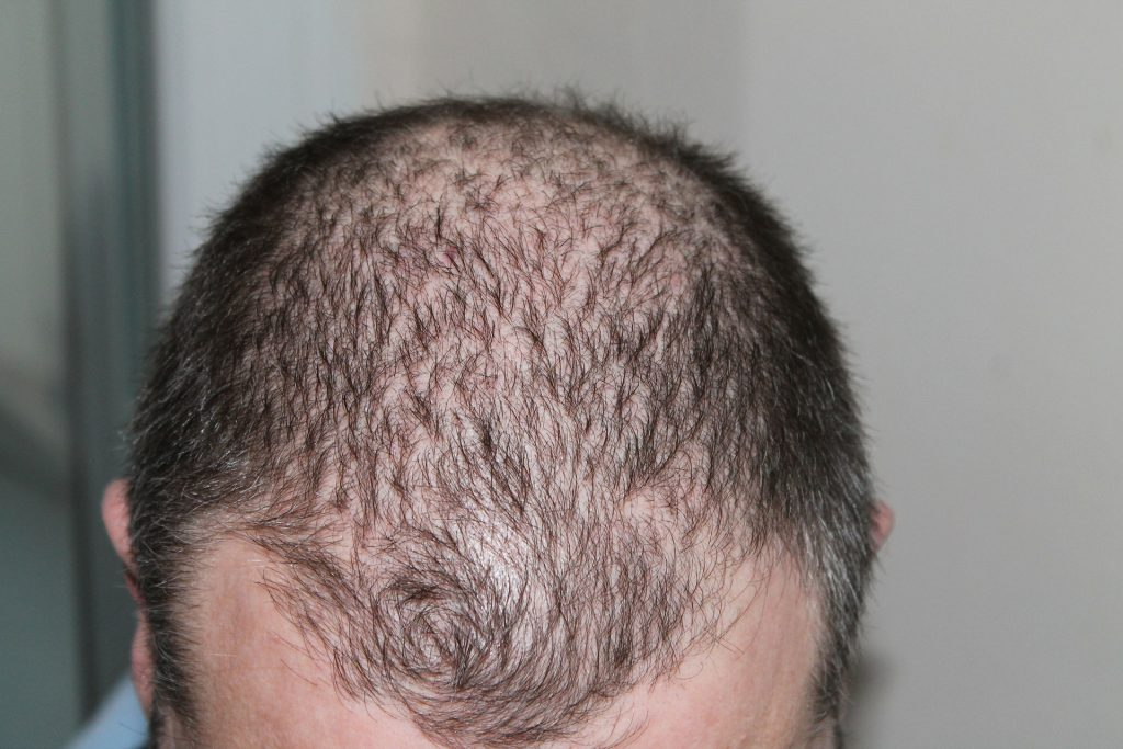 Homeopathic Remedies for Hair Loss